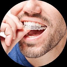 man applying his teeth aligners