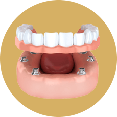 diagram of implant-supported dentures