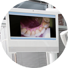 image of teeth seen from intraoral camera