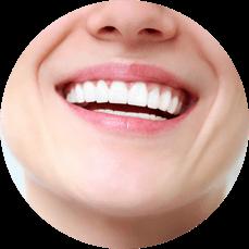 bright, white smile