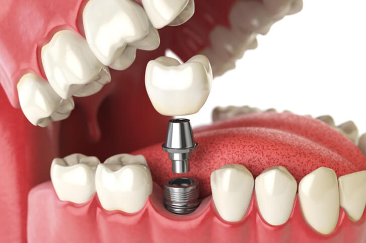 Side view computer generated image of dental implant procedure