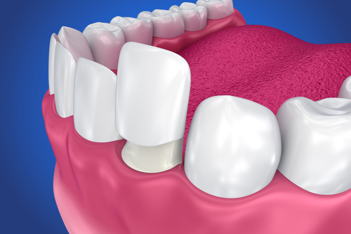 An illustration of a veneer going onto a prepared tooth
