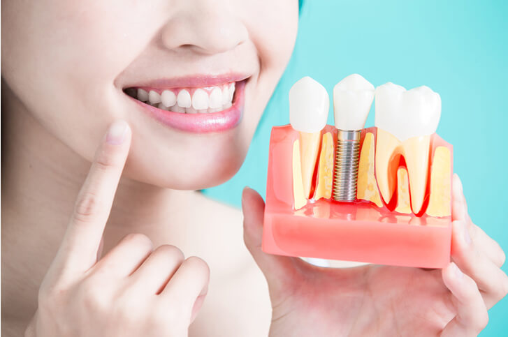 dental implants in New Braunfels - woman holding fake dental implant and pointing to her teeth