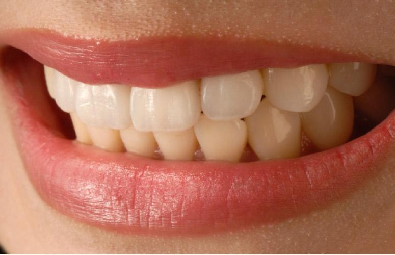 teeth closeup